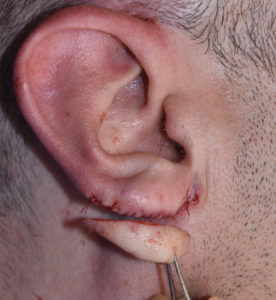 earlobe-reduction-dr-barry-eppley-indianapolis