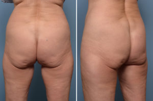 lower-buttock-sag-dr-barry-eppley-indianapolis