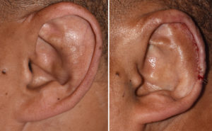 macrotia-reduction-left-ear-scaphal-flap-intraop-result-dr-barry-eppley-indianapolis