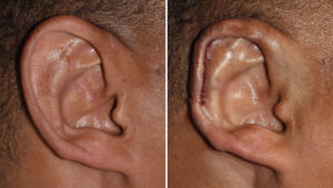macrotia-right-ear-scaphal-reduction-intraop-result-dr-barry-eppley-indianapolis