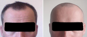 posterior-temporal-reduction-result-front-view-dr-barry-eppley-indianapolis