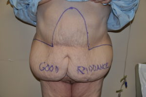 abdominal-panniculectomy-indianapolis-dr-barry-eppley