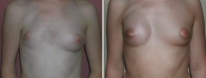 breast-implant-reconstruction-in-polands-sundrome-result-front-view-dr-barry-eppley-indianapolis
