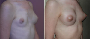 breast-implant-reconstruction-in-polands-syndrome-result-oblique-view-dr-barry-eppley-indianapolis