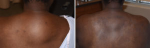 buffalo-hump-reduction-result-back-view-dr-barry-eppley-indianapolis