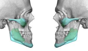 cheek-and-jaw-angle-implant-exchange-2-dr-barry-eppley-indianapolis