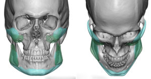 cheek-and-jaw-angle-implant-exchange-dr-barry-eppley-indianapolis