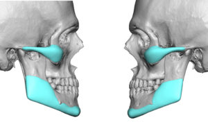 custom-cheek-and-jaw-angle-implant-designs-2-dr-barry-eppley-indianapolis