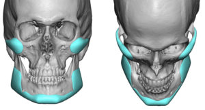 custom-cheek-and-jaw-angle-implant-designs-dr-barry-eppley-indianapolis