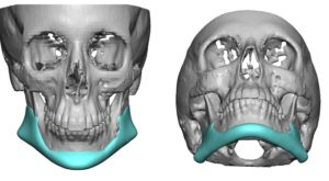 custom-jawline-implant-replacement-for-malpositioned-jaw-angle-implants-front-view-dr-barry-eppley-indianapolis