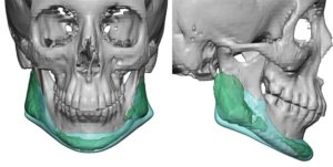 custom-jawline-implant-replacement-for-malpositioned-jaw-angle-implants-overlay-dr-barry-eppley-indianapolis