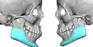 custom-jawline-implant-replacement-for-mapositioned-jaw-angle-implants-side-view-dr-barry-eppley-indianapolis