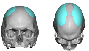 custom-skull-implant-design-for-sagittal-ridge-deformity-dr-barry-eppley-indianapolis