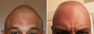 custom-skull-implant-results-front-view-dr-barry-eppley-indianapolis