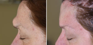 dl-forehead-osteoma-removal-intraop-side-view-dr-barry-eppley-indianapolis