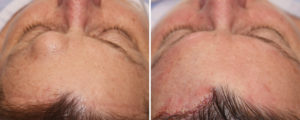 dl-forehead-osteoma-removal-intraop-top-vew-dr-barry-eppley-indianapolis