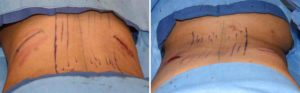 effects-of-rib-removal-for-waistline-narrowing-intraop-dr-barry-eppley-indianapolis