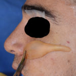 extended-high-cheek-implant-design-dr-barry-eppley-indianapolis
