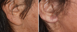 facelift-earlobe-reduction-result-side-view-copy
