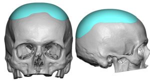 heightening-skull-implant-design-dr-barry-eppley-indianapolis