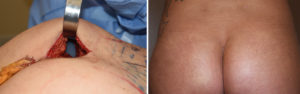 intramuscular-buttock-implants-incision-dr-barry-eppley-indianapolis
