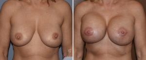 large-breast-implants-replacements-front-view-dr-barry-eppley-indianapolis