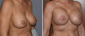 large-breast-implants-replacement-results-oblique-view-dr-barry-eppley-indianapolis