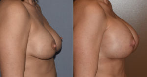 large-breast-implants-replacement-results-side-view-dr-barry-eppley-indianapolis