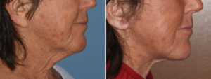 long-earlobe-facelift-result-side-view