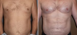 pectoral-implants-and-abdominal-etching-result-front-view-dr-barry-eppley-indianapolis