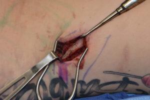 rib-removal-12-angulation-dr-barry-eppley-indianapolis
