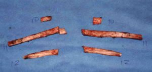 rib-removal-for-wasitline-narrowing-specimens-dr-barry-eppley-indianapolis