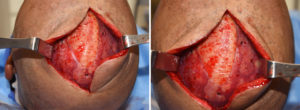 skull-implant-and-sagittal-reduction-intraop-dr-barry-eppley-indianapolios