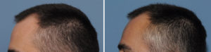 small-skull-implant-augmentation-results-side-view-ddr-barry-eppley-indianapolis