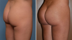 tb-buttock-implants-oblique-view-dr-barry-eppley-indianapolis