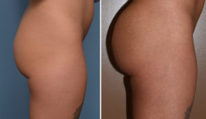 tb-buttock-implants-side-view-dr-barry-eppley-indianapolis