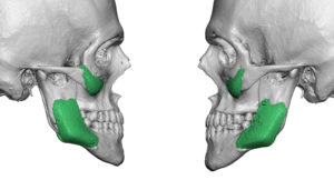 wrong-cheek-and-jaw-angle-implants-2-dr-barry-eppley-indianapolis