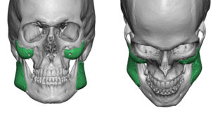 wrong-cheek-and-jaw-angle-implants-dr-barry-eppley-indianapolis