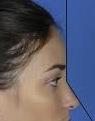 frontonasal-angle-in-rhinoplasty