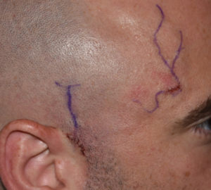 temporal-artery-ligation-dr-barry-eppley-indianapolis
