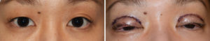 asian-double-eyelid-surgery-intraop-dr-barry-eppley-indianapolis