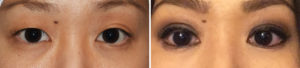 asian-double-eyelid-surgery-results-front-view-dr-barry-eppley-indianapolis