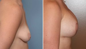 Breast Implant and Lift Surgery result side view Dr Barry Eppley Indianapolis