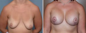 Breast Implant and Lift surgery result front view Dr Barry Eppley Indianapolis