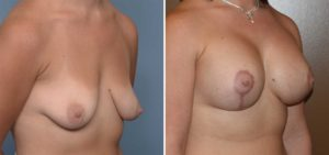 Breast Implant and Lift surgery result oblique view Dr Barry Eppley Indianapolis