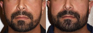 Custom Jawline Implant result front view Dr Barry Eppley Indianapolis