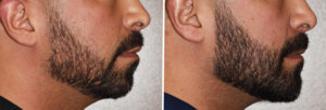 Custom Jawline Implant result side view Dr Barry Eppley Indianapolis