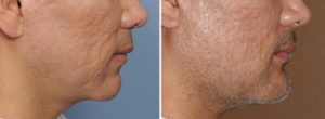 Cusytom Jawline Implant Replacement for Medpor Implants result side view Dr Barry Eppley Indianapolis