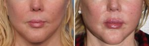 female-jaw-angle-implants-result-front-view-dr-barry-eppley-indianapolis