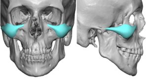 Malar-Arch Cheek Implant Desigtn Dr Barry Eppley Indianapolis